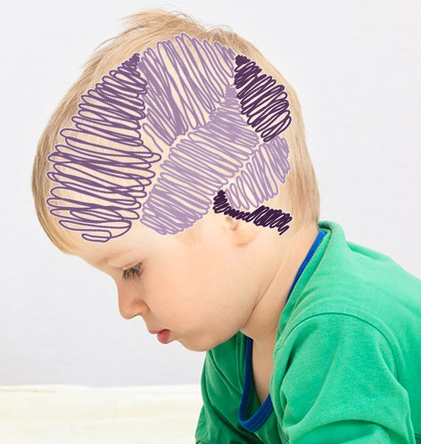 neurologia_infantil.jpg